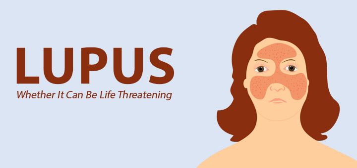 Know-About-Lupus