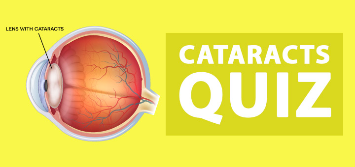 Cataracts-Quiz