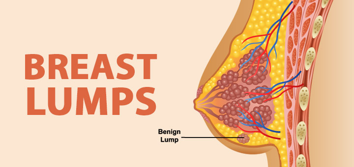 breast-lumps